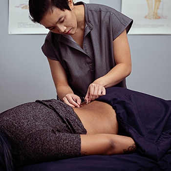 This is an image of Dr. Khanita placing acupuncture needles on a client's back.